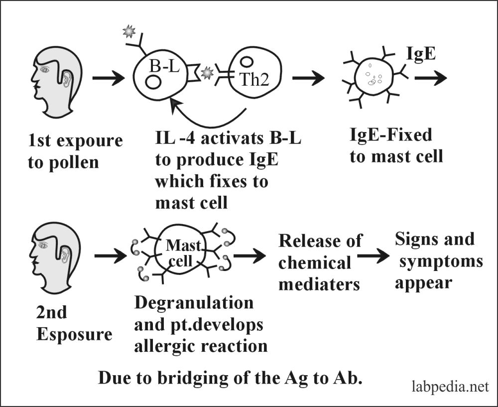 Fig 90: Combination of IgE with antigen site