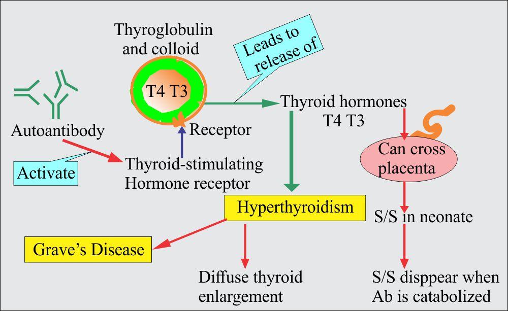 Chapter 23: Autoimmune diseases, Hashimoto's Thyroiditis and Grave's disease