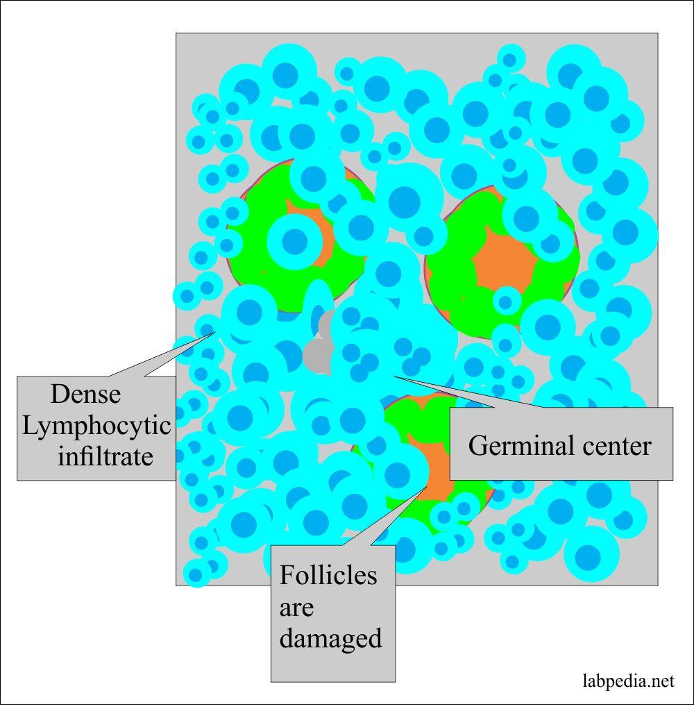 Hashimoto's thyroiditis microscopic picture