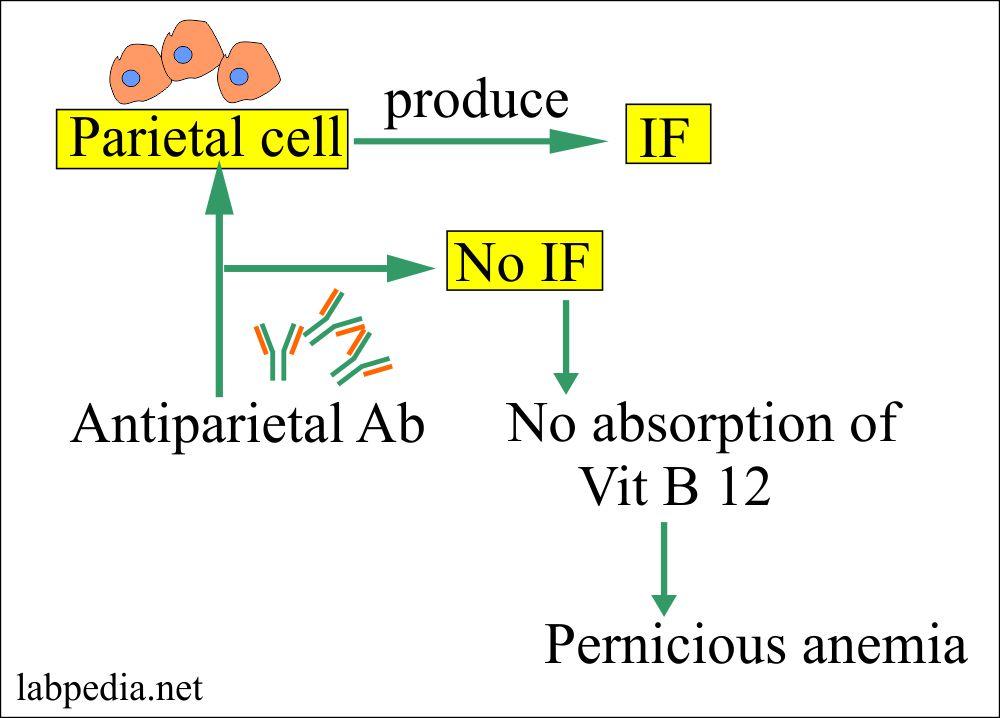 Chapter 22: Autoimmune diseases, Pernicious Anemia (Vitamin B12 Deficiency)