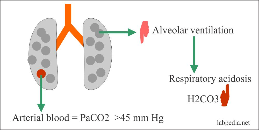 Acid-base Balance – Part 2 – Respiratory Acidosis and Respiratory Alkalosis