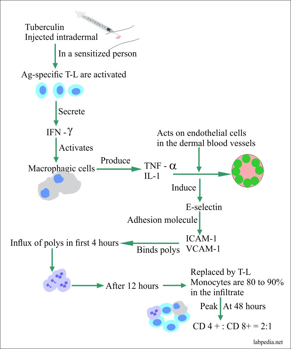 Type IV reaction, summary of the intradermal tubrculin injection