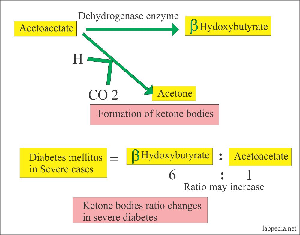 ketone bodies and their ratio