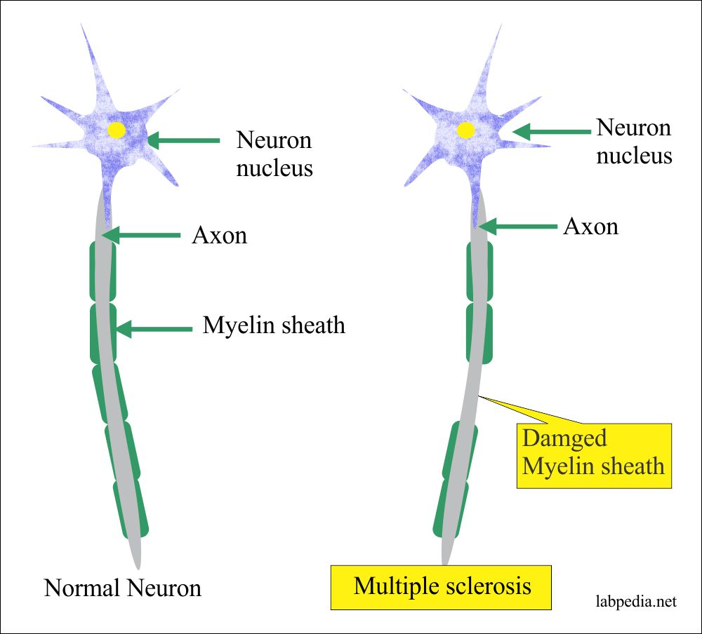 Multiple Sclerosis changes in neuron